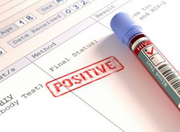 Metade das novas infecções do HIV na América Latina ocorreram no Brasil