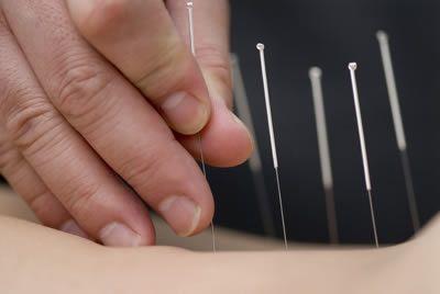 Saúde de Aracaju oferece tratamento através da acupuntura