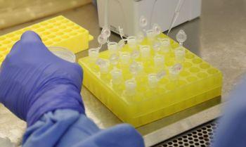 Testes para vacina contra HIV têm resultados promissores