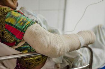 Medo da Covid-19 faz vítimas de queimaduras não buscarem atendimento médico adequado